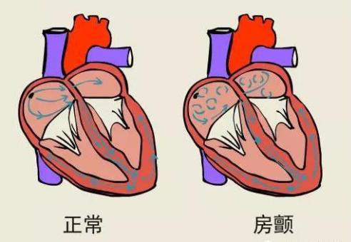 身体疲乏是什么原因_心脏房颤,什么是心脏房颤